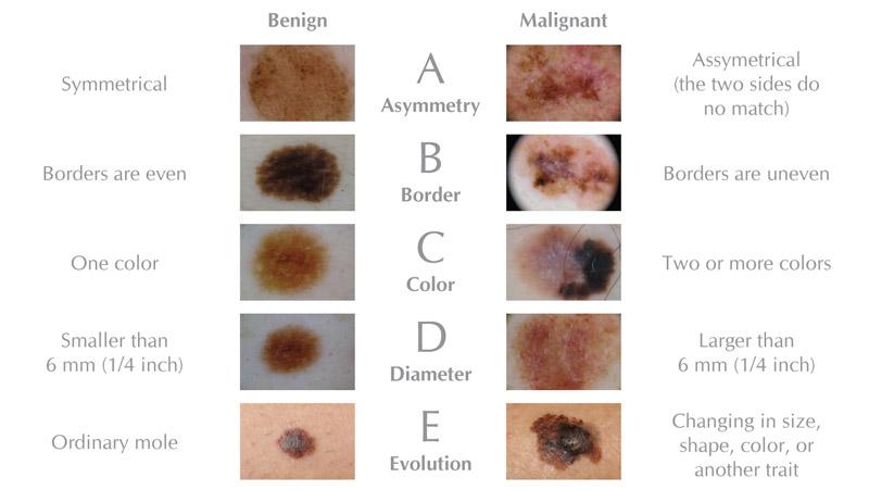 Skin cancer Symptoms - Mayo Clinic