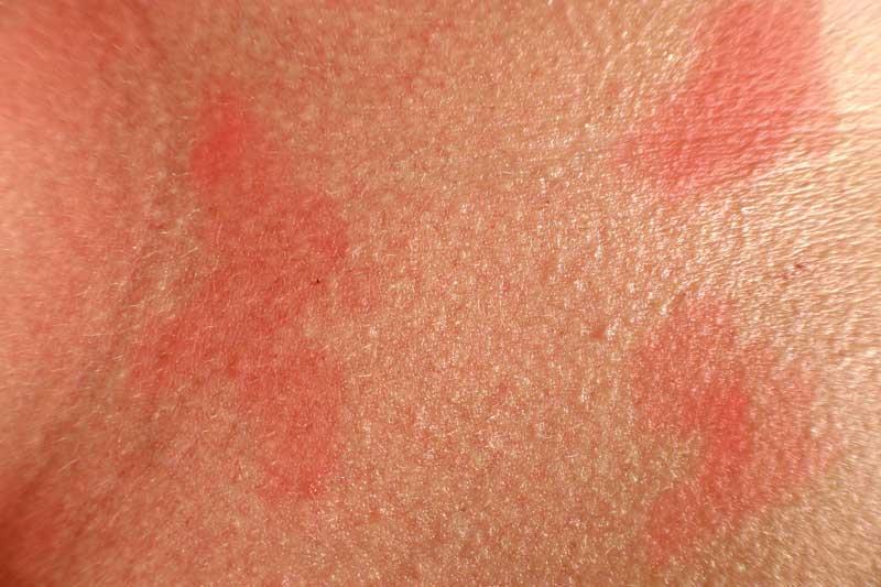 Dermatitis Atópica Marbella