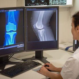 Cirugía de Rodilla en Marbella