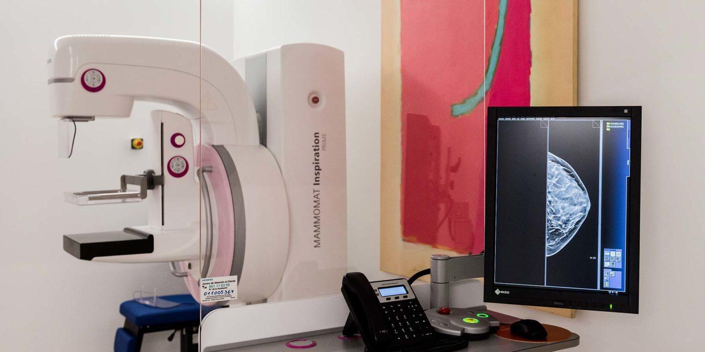 Tomosíntesis Mamografía 3D