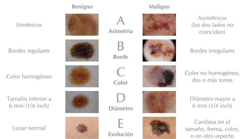 ABCDE del Melanoma | HC Marbella International Hospital