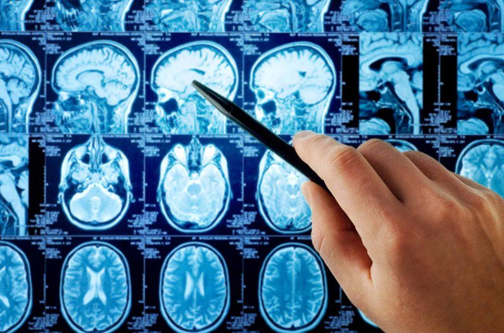 Neurología Marbella