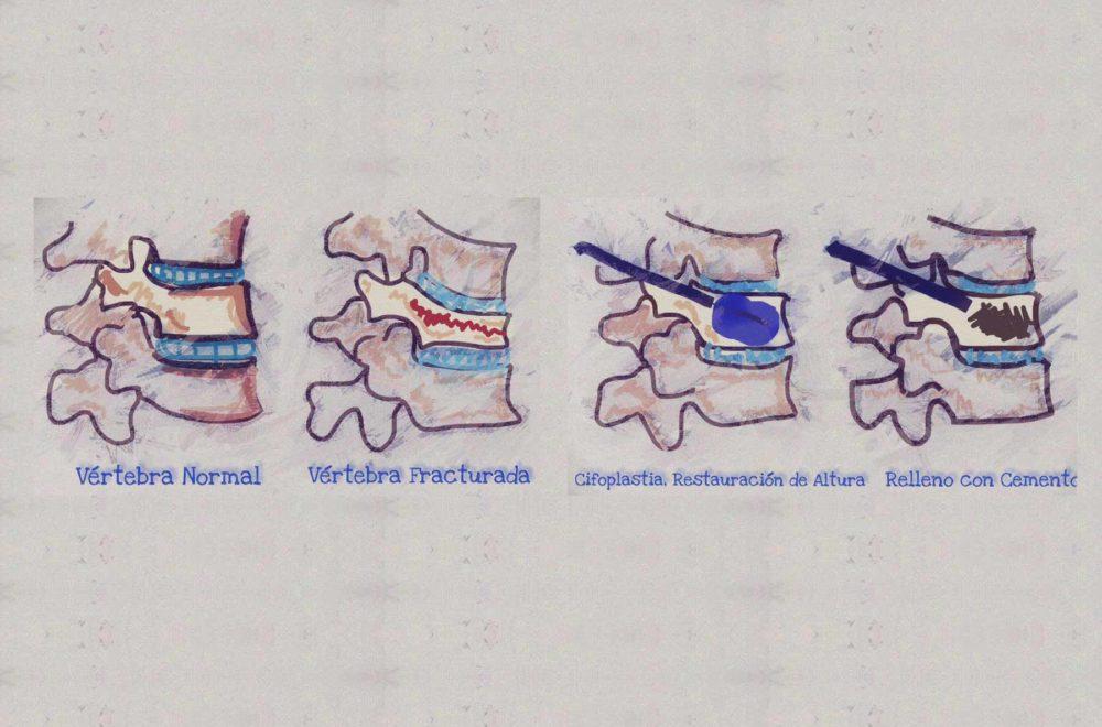 Cifoplastia