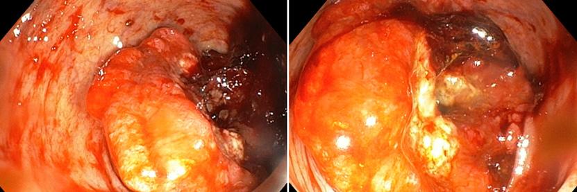 Tumor de colon