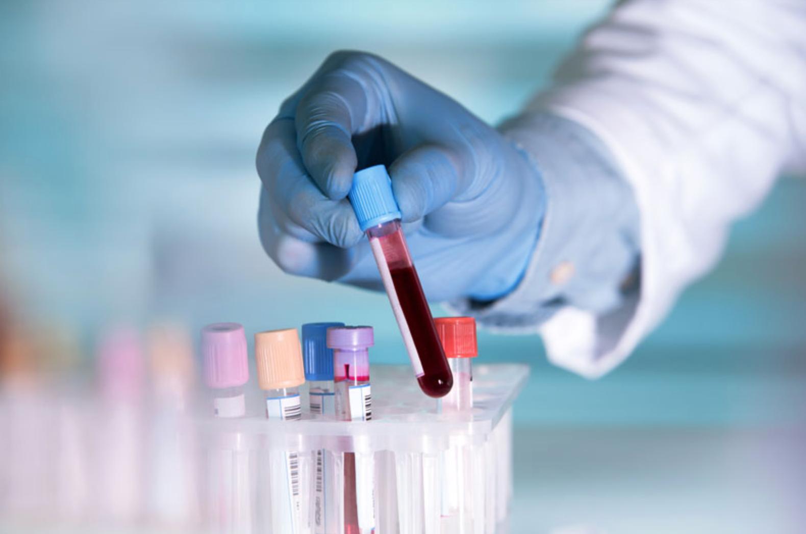 test prenatal marbella