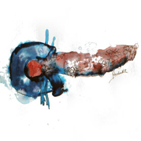 tratamiento cáncer pancreas
