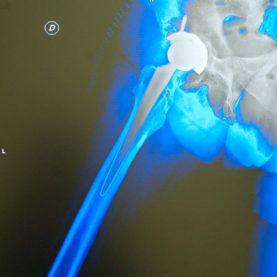 cirugia de cadera en marbella