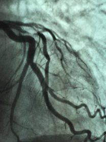 Tecnologias Cardiovasculares