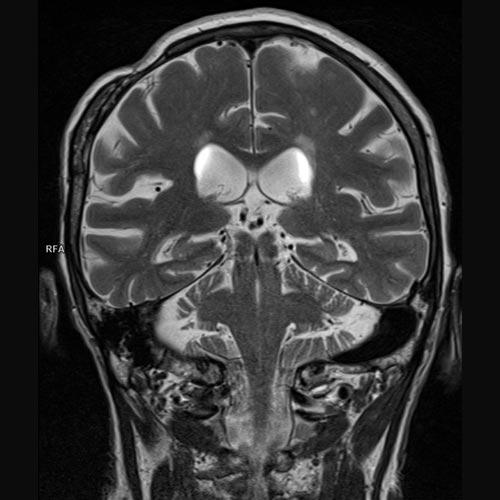 Cerebro 3 Teslas