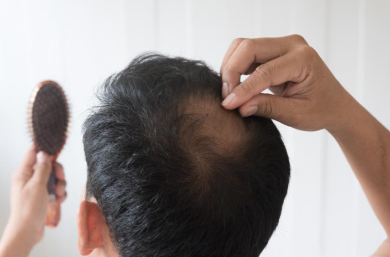 Mitos sobre el cabello III