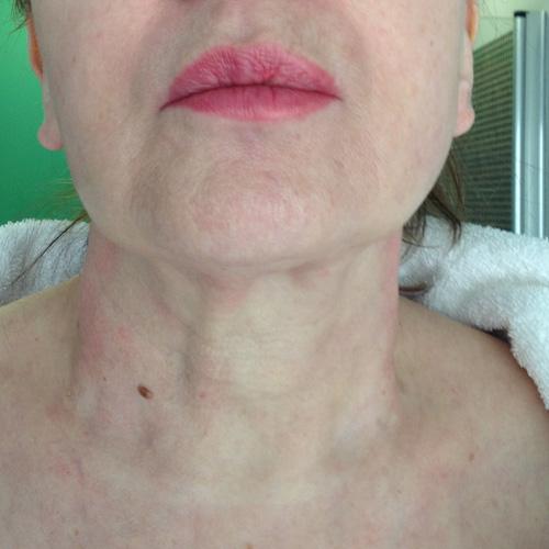 Tratamiento cuello medicina estética