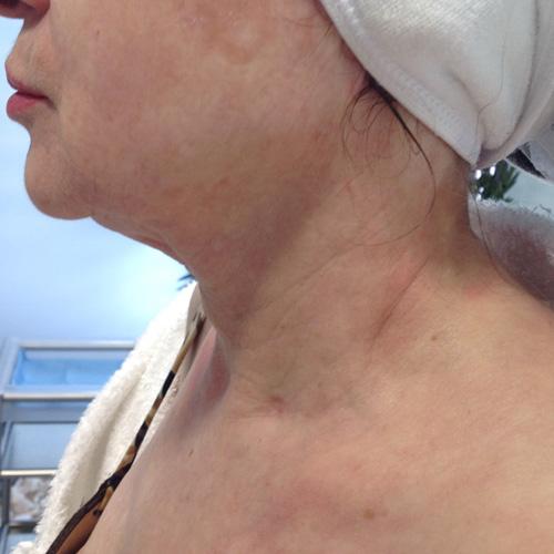 Tratamiento cuello Ácido Hialurónico
