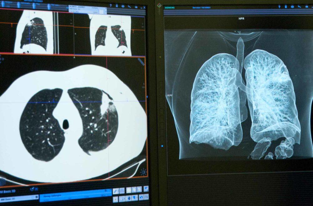 Detección precoz cáncer de pulmón