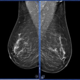 Tomosynthesis in dense breasts