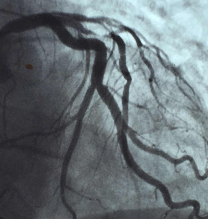 cardiología Marbella