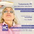 Promoción tratamiento IPL