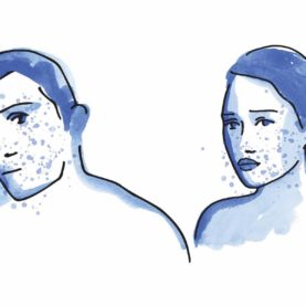 Maskné, el acné producido por las mas...