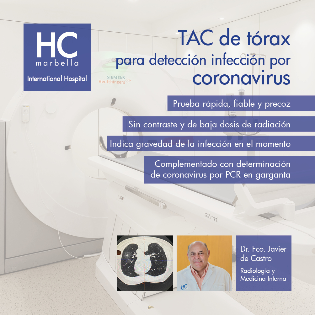 TAC tórax Coronavirus