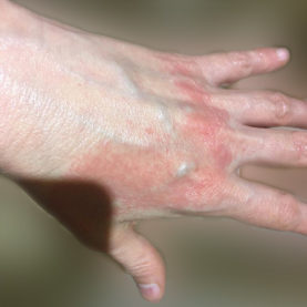 Dermatitis appears on hands # covid19