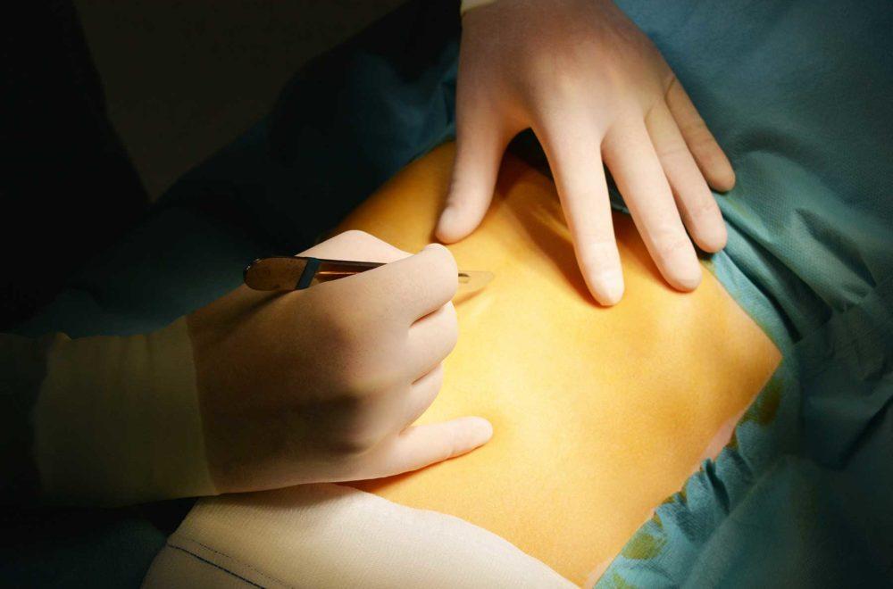 cirugía pared abdominal