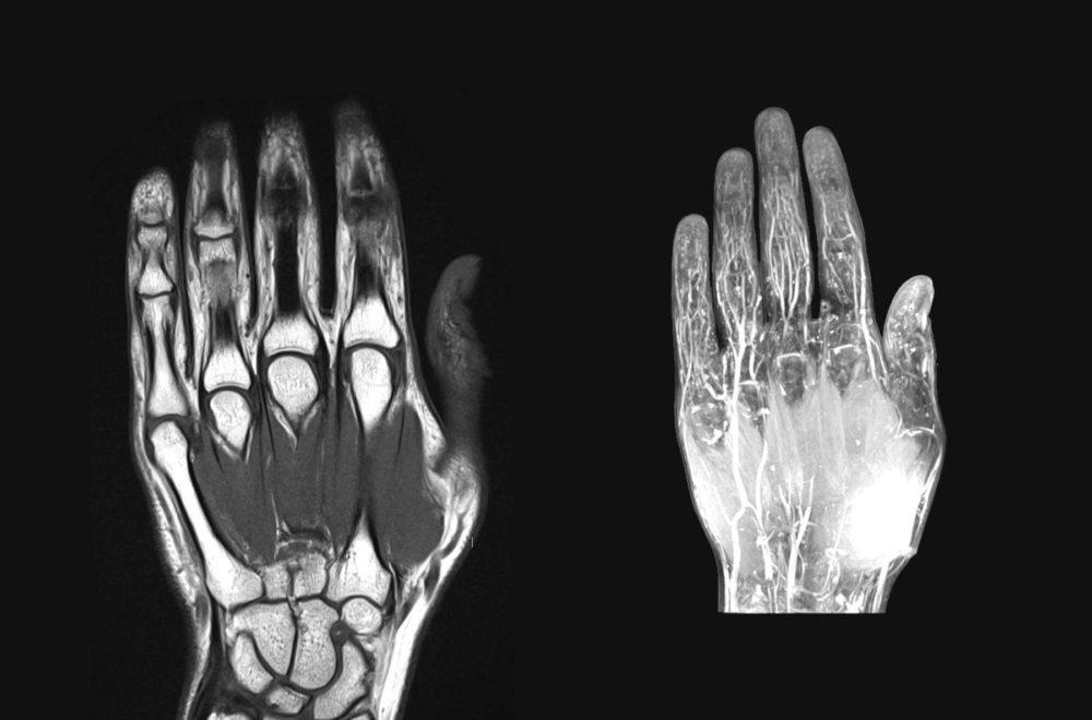 traumatología mano