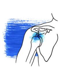 luxación hombro anterior