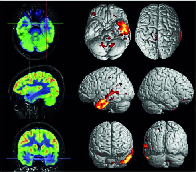 pet tac pacientes neuro