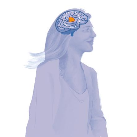 pet tac neurología