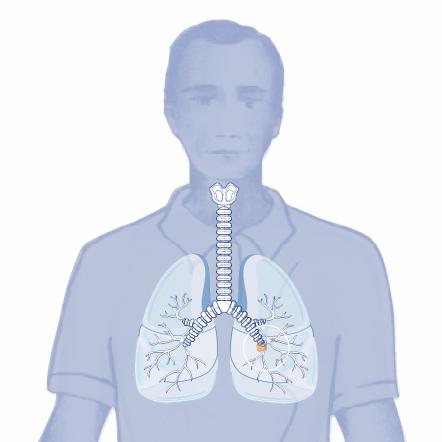 pet tac ca pulmón