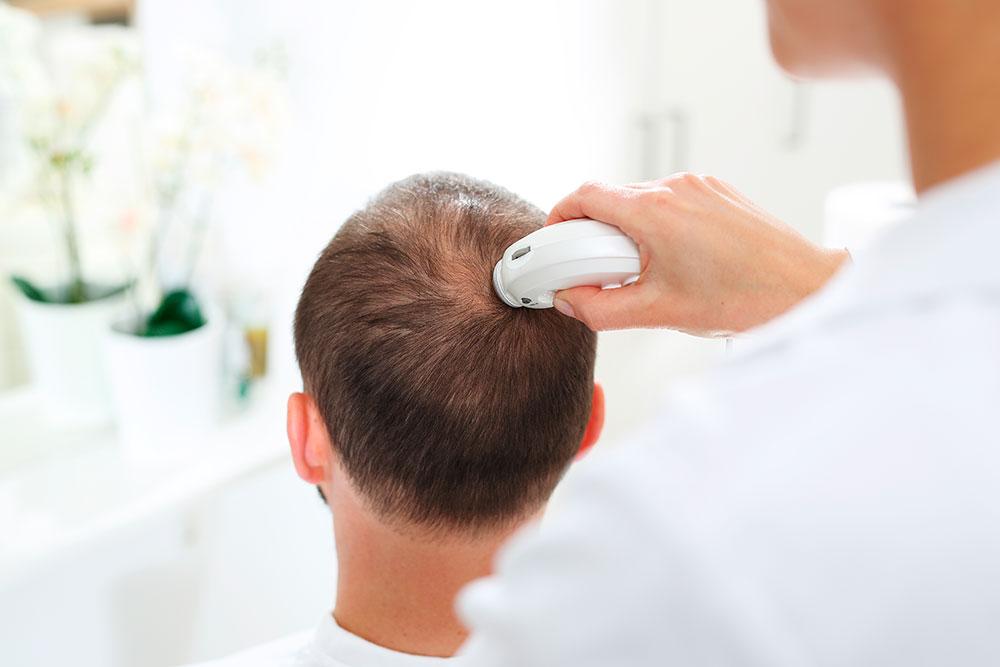 Treatments for alopecia